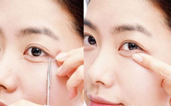 Dùng keo dán tạo bọng mắt
