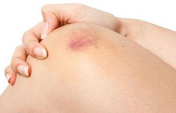 Vết bầm tím trên da