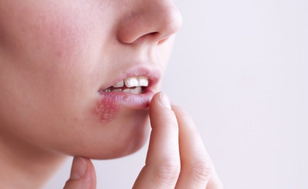 Nguyên nhân gây bệnh giời leo ở miệng, môi