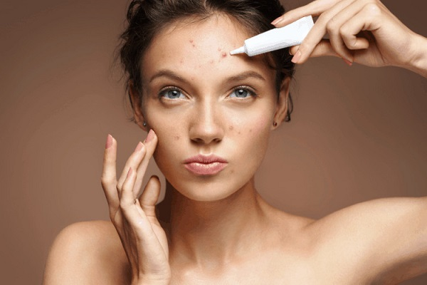 Nặn mụn xong có nên Skincare không?