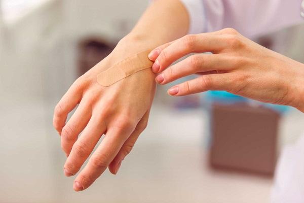 Lưu ý khi xử lý vết thương phòng ngừa sẹo trắng