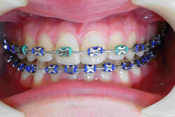 cơ sở niềng răng tốt nhất tại TPHCM