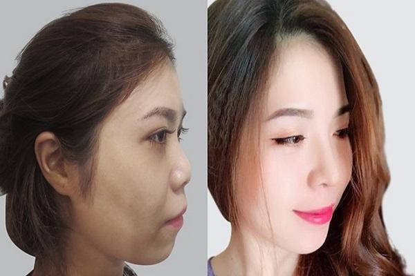 Ca nâng mũi của Tiến sĩ Lê Hữu Mai