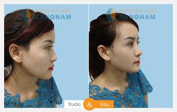 Nâng mũi tại Bệnh viện thẩm mỹ Kangnam